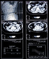 Health medical scan