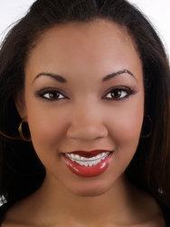 Ebony braces